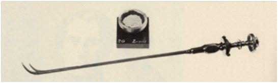 Litotrito usato da Thompson su Napoleone III e Frammento del calcolo estratto