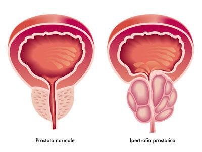 Come mantenere la prostata in forma